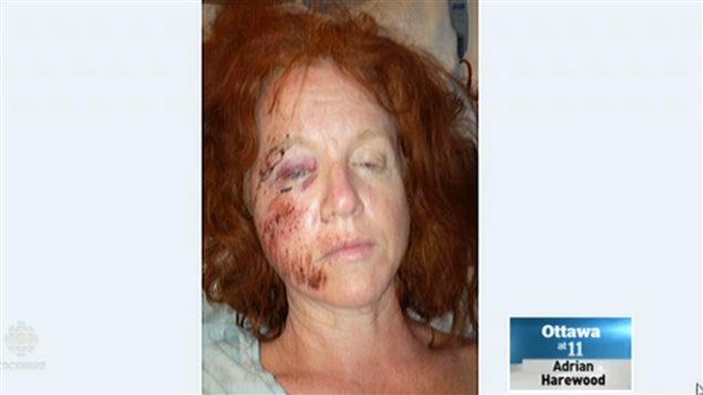 加拿大鹅把正骑车的凯莉扑倒、让她住了5天医院